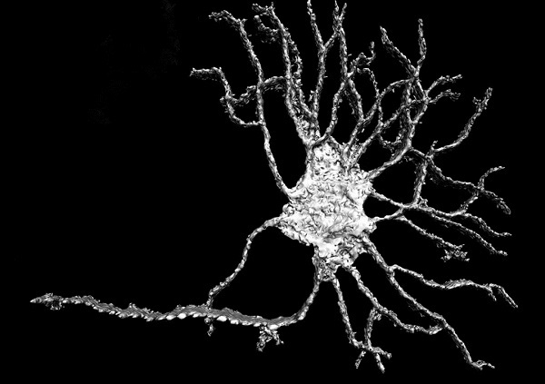 An example of the original neuronal imagery as supplied courtesy of Paul Rigby from the Centre for Microscopy, Characterisation and Analysis, University of Western Australia